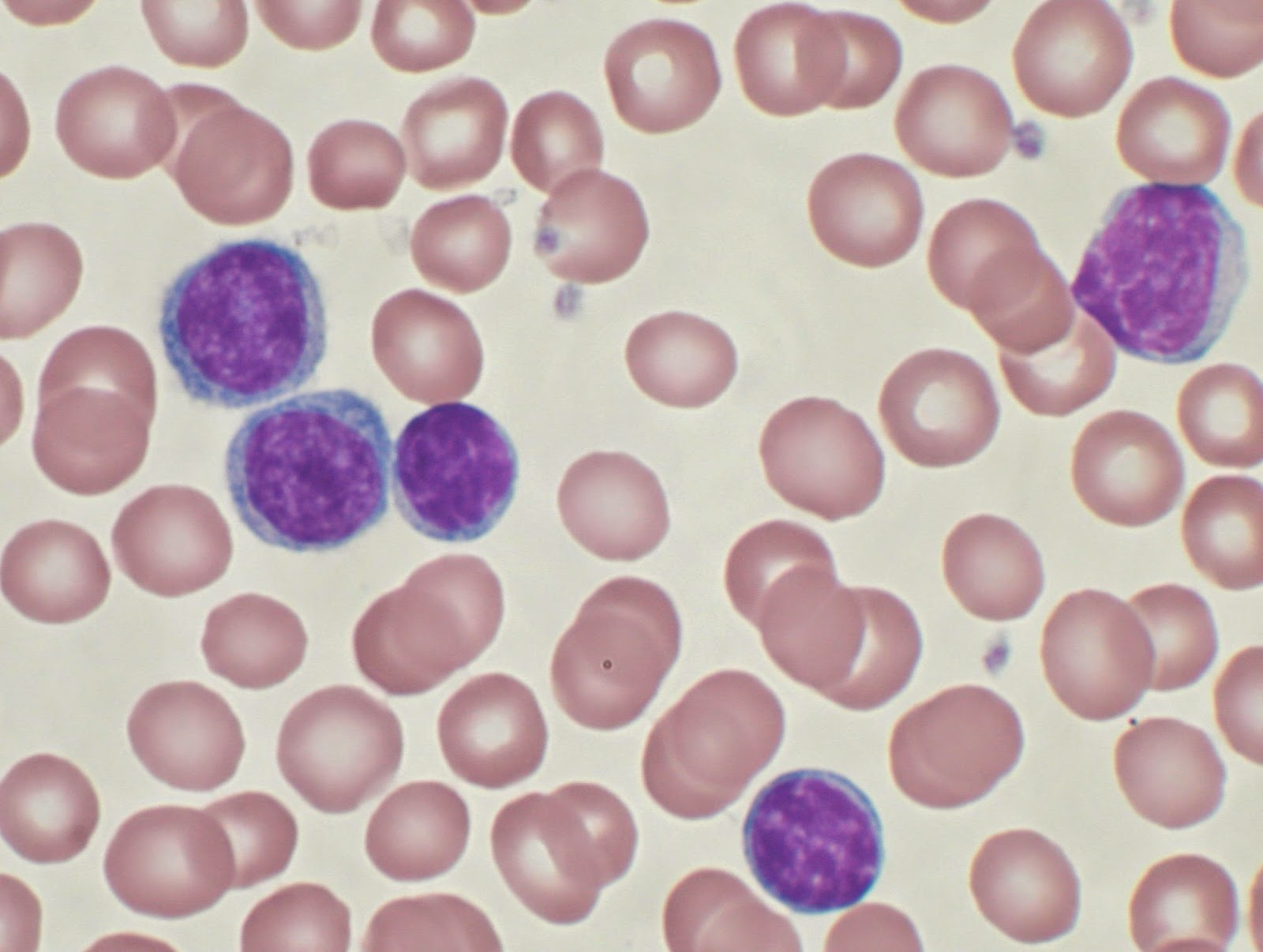 Peripheral blood smear showing CLL cells