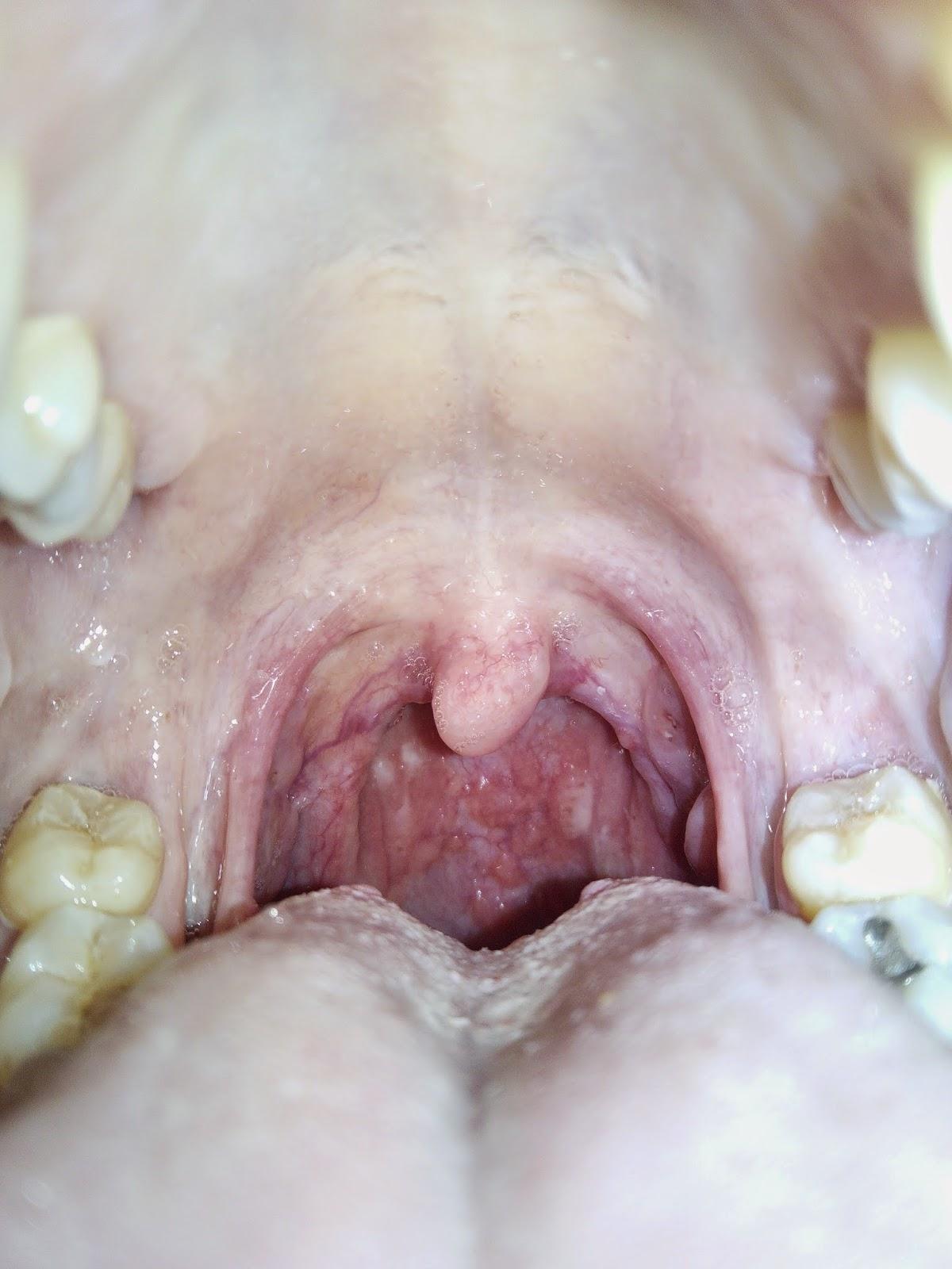 Manchas blancas en la parte posterior de mi garganta