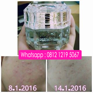 Testimoni lasoul sleeping mask masker alami untuk menghilangkan bekas jerawat, testimoni La'Soul Diamond Hydration Sleeping Mask, la'soul sleeping mask testimoni, la'soul sleeping mask review, testimoni lasoul sleeping mask, testimoni la soul sleeping mask,testimoni la soul diamond, diamond white hydration sleeping mask