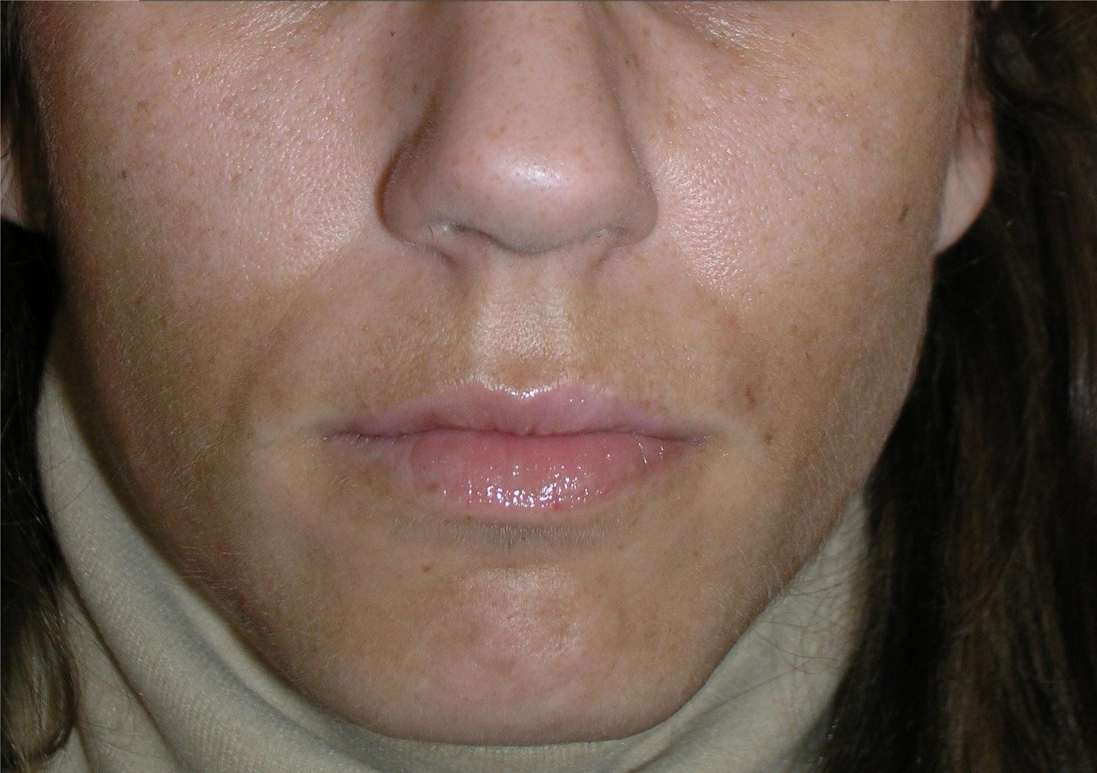 Las máscaras para el blanqueamiento de la piel