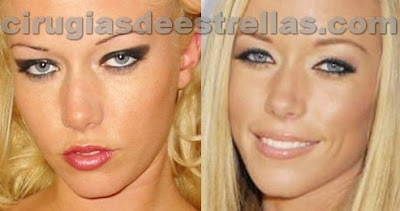 kendra wilkinson antes y despues