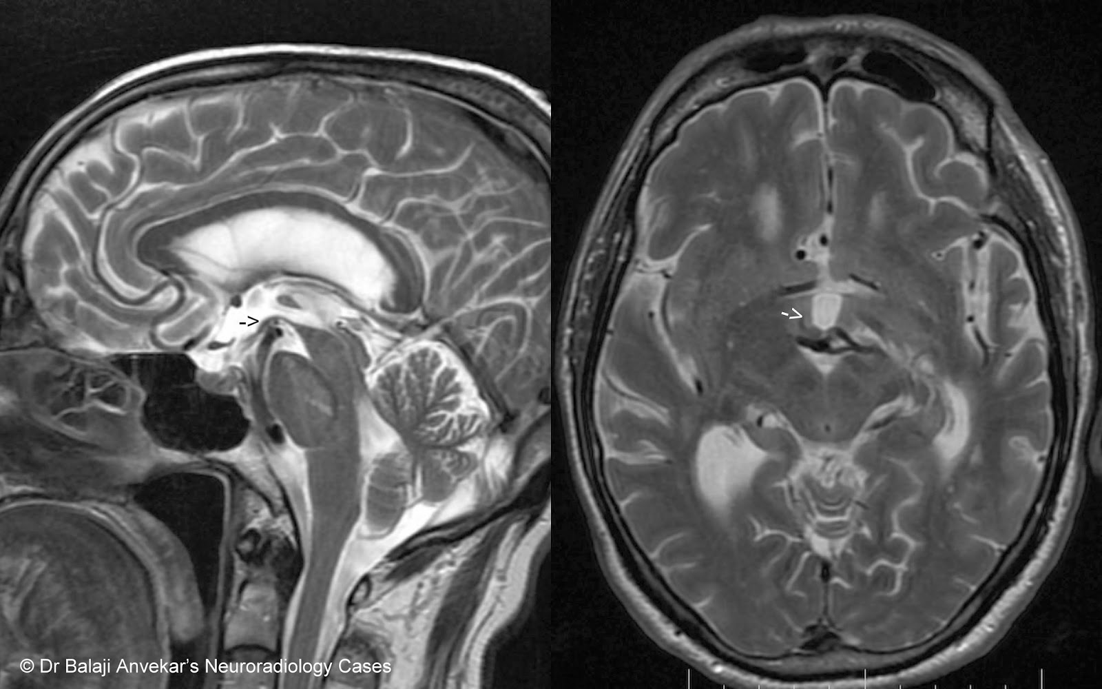 Dr Balaji Anvekar's Neuroradiology Cases: 01/03/14 - 01/04/14