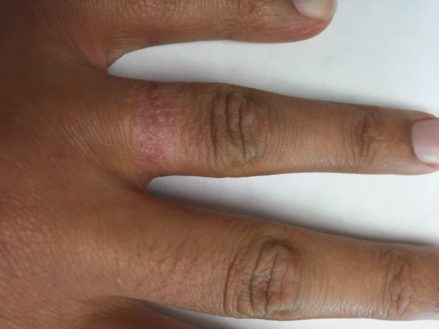 Wedding Ring Dermatitis Treatment Wedding Gallery