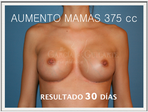 aumento_senos_madrid