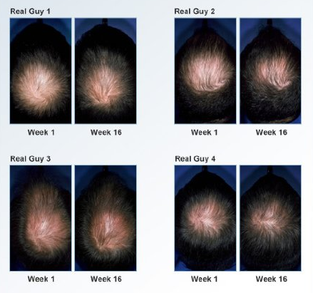 Rogaine for Men Before and After Pictures