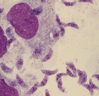 veterinaria online toxoplasmosis en humanos
