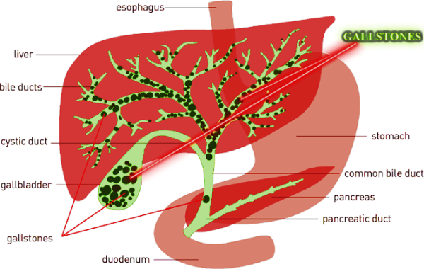 Successful safe liver cleanse in 24 hours get rid of over 1000 because the stones are porous can accumulate cysts bacteria parasites and viruses that travel through the liver in this way are forming nests of ccuart Choice Image
