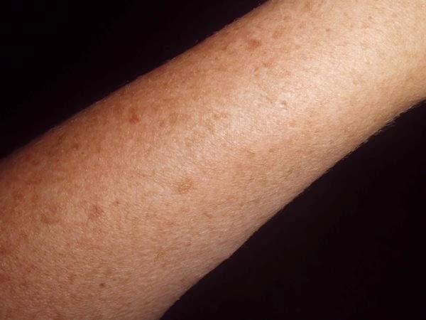 piel exfoliada
