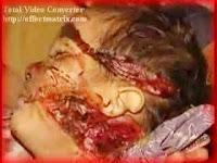 Gambar kekejaman terhadap Umat Islam
