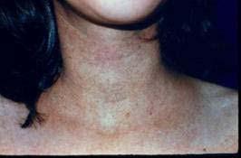 acido urico alto causas y tratamiento alimentos permitidos con acido urico elevado acido urico elevado en insuficiencia renal