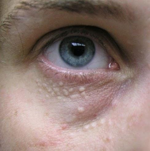 Một số mẹo vặt trị mụn thịt quanh mắt nhanh chóng