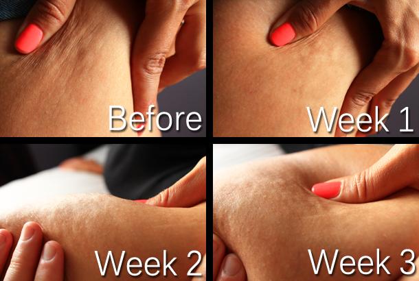 body contouring crema anticellulie efficace