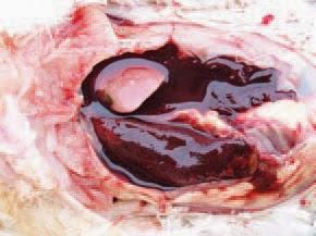 Gan xuất huyết và nhiễm mỡ