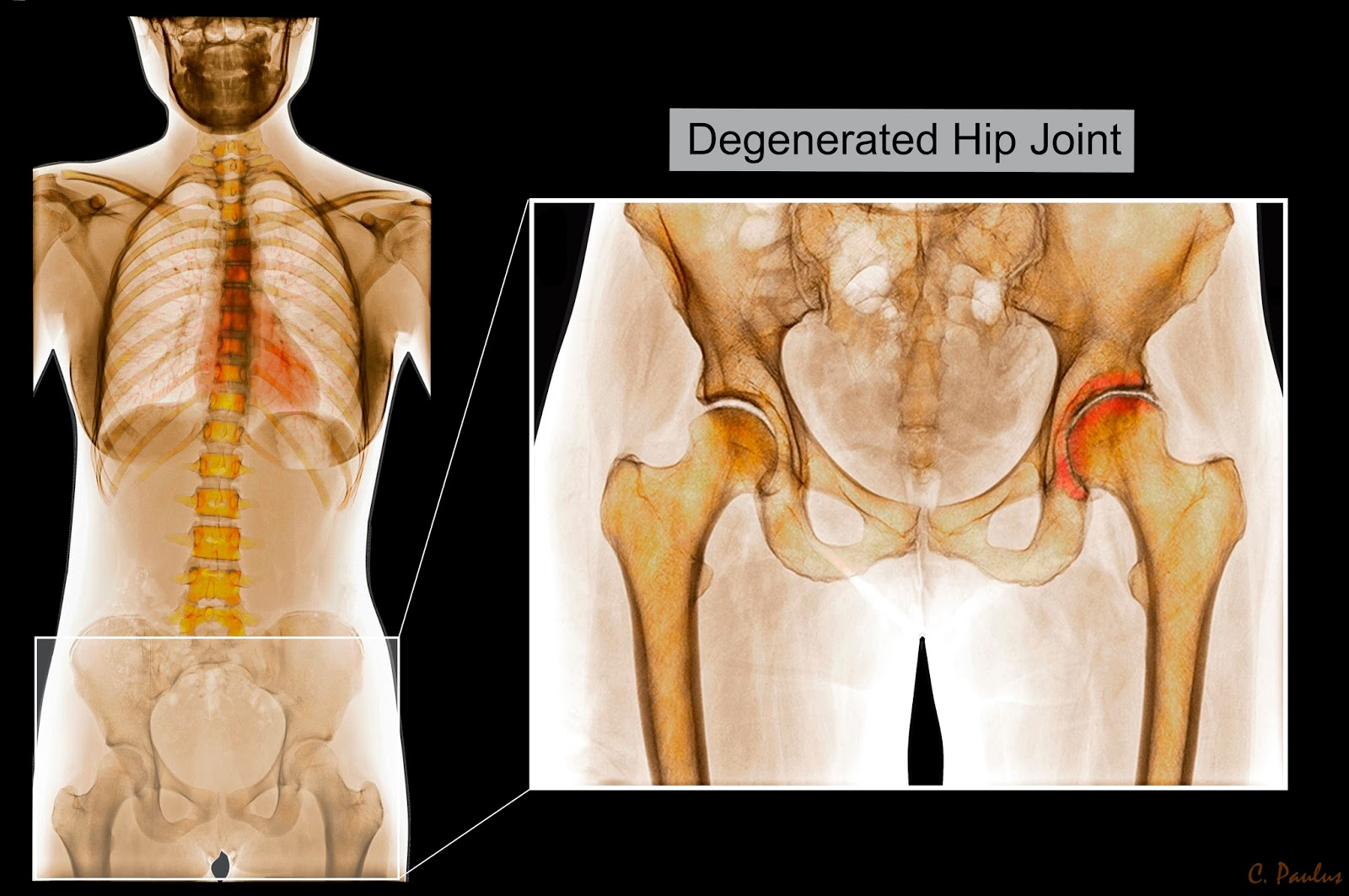 Color X-Ray of the Pelvis showing Hip Joint Arthritis