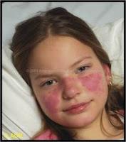 penyakit lupus dan gejalanya