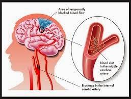Obat Untuk Penyakit Pembuluh Darah Pecah