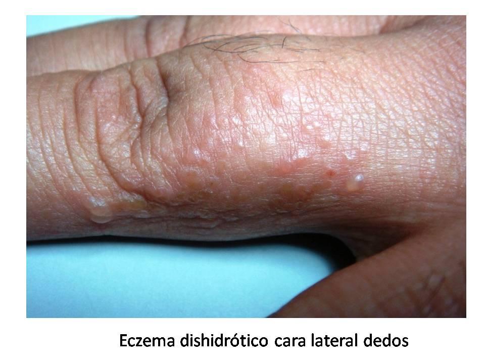 La psoriasis de la foto en las manos de la foto
