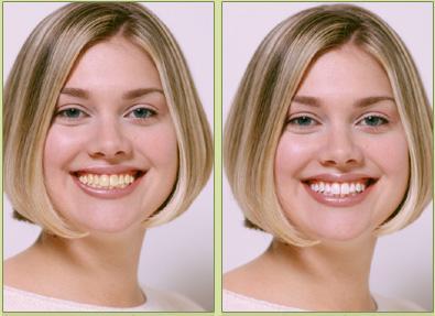 отбеливание зубов zoom 4 противопоказания