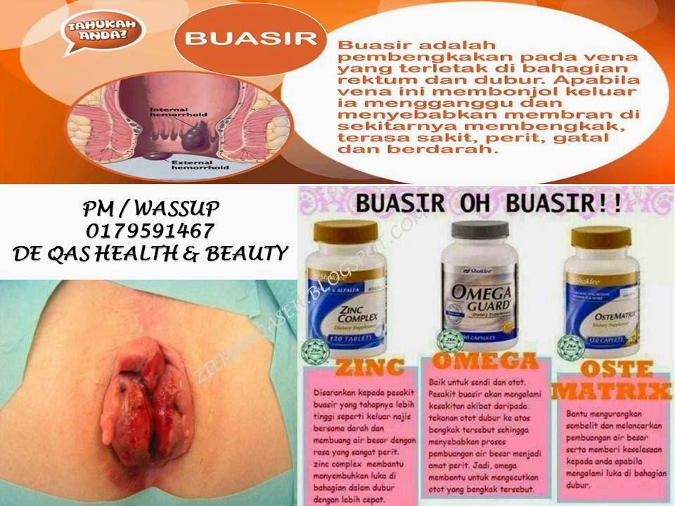 Nqf Health Beauty Kenali Buasir