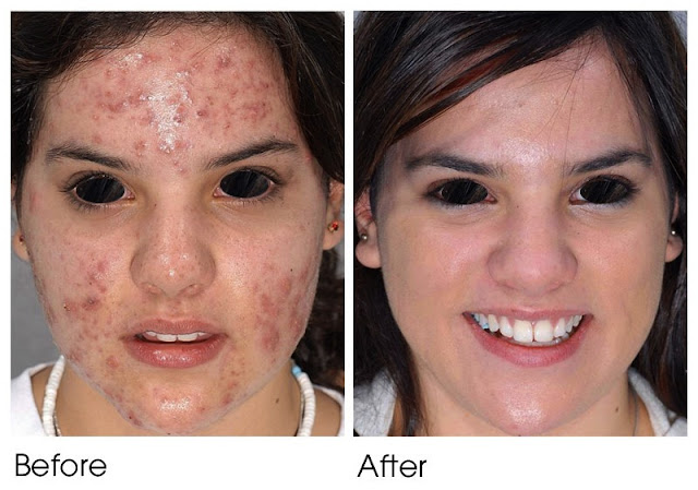 Acne treatment before after Dr. Shazia Ali