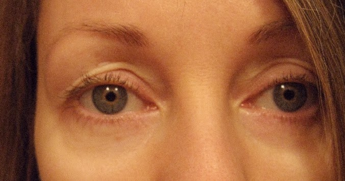 Chemical Peels For Acne And Anti Aging Retin A For Eyes