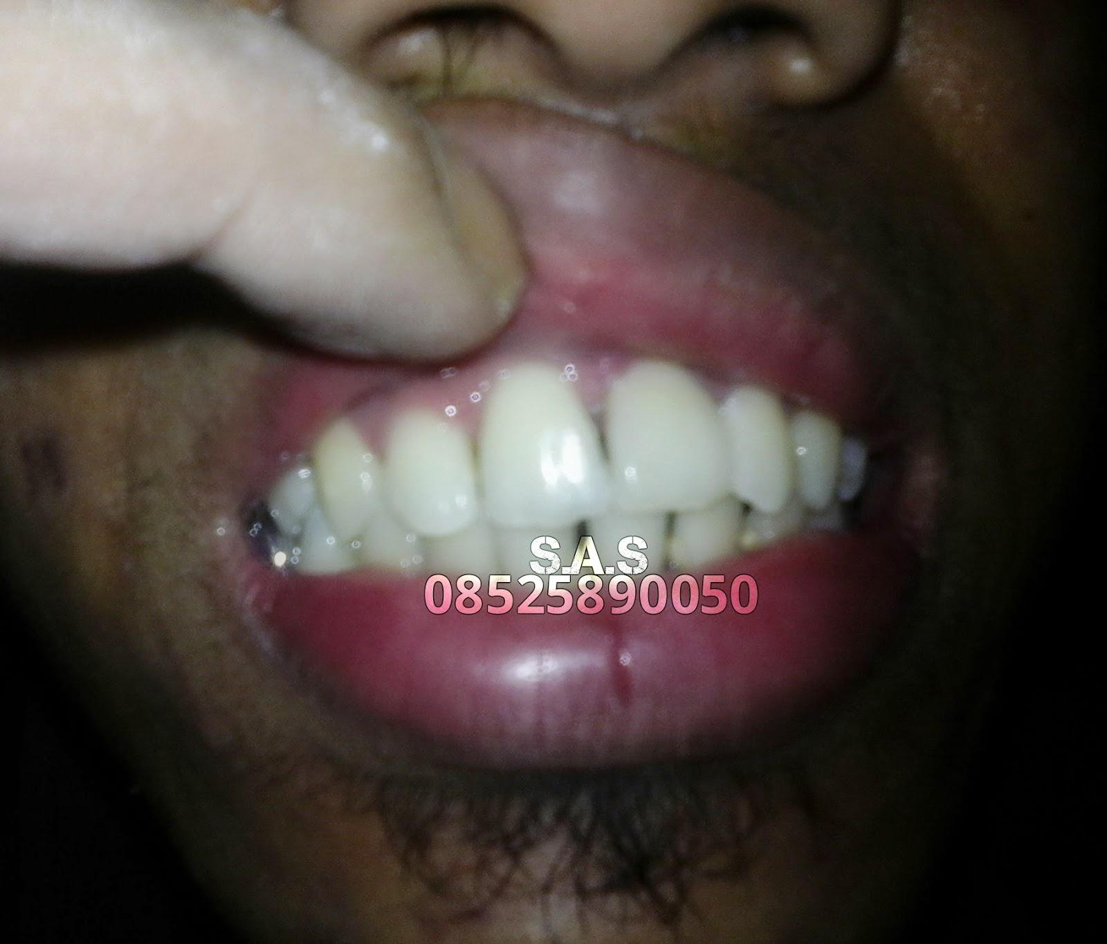 S A S Ahli Gigi Kota Pati Jateng Kota Jember Jatim Foto Hasil