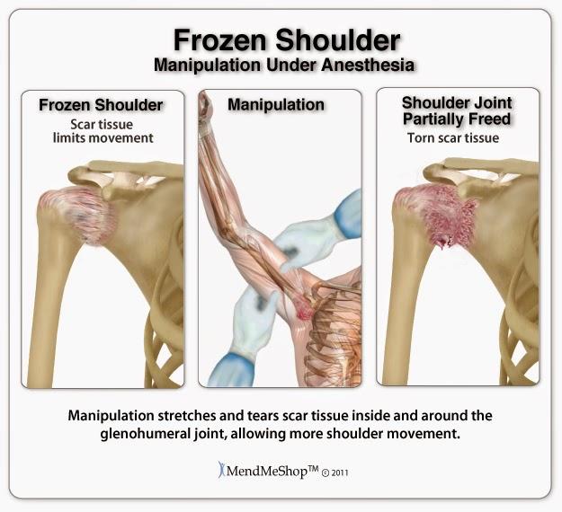 Treatments for Frozen Shoulder: Frozen Shoulder debate - joint ...