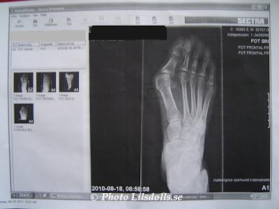 hallux valgus, halluxvalgus-operation, röntgenbild