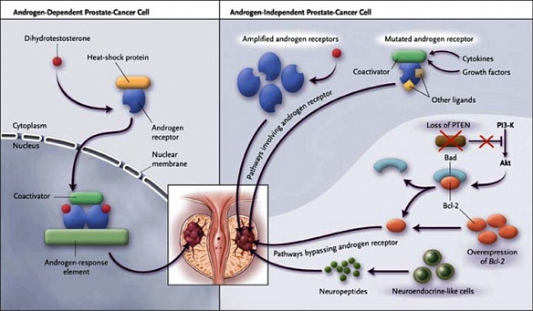 MEDICAL ISSUE: PROSTATE CANCER: September 2012