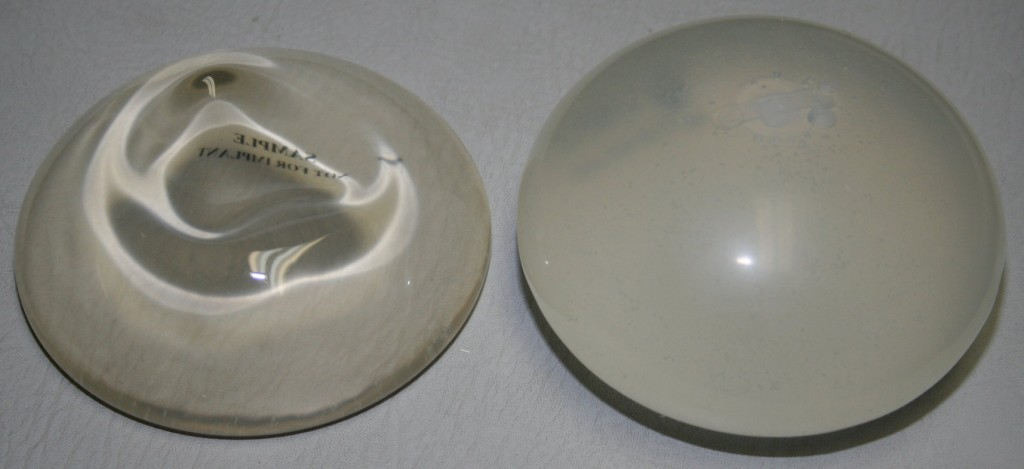 Can not Saline vs silicone breast implants simply
