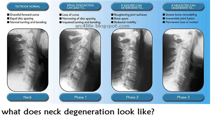 what are the phases of neck degeneration