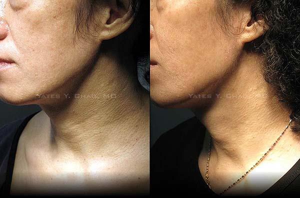 Radiesse微晶瓷頸紋治療, 趙彥宇