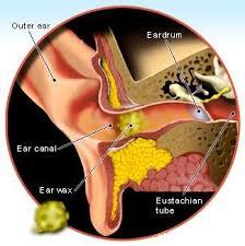 Obat Tradisional Radang Telinga