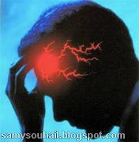 الجلطة الدماغية..أعراضها و طرق علاجها