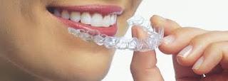 Görünmeyen diş teli