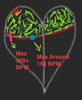 Atrial Fibrillation in a Heart with an Accessory Pathway