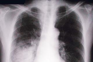 cegah kanak-kanak dari pneumokokal