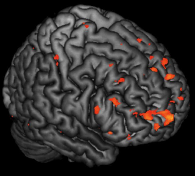 Alterations in brain activity in children at risk of schizophrenia predate onset of symptoms, Science relief