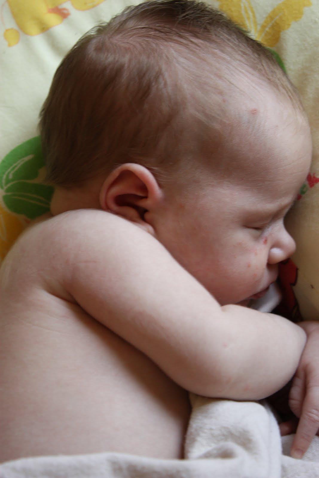 chickenpox infant #11
