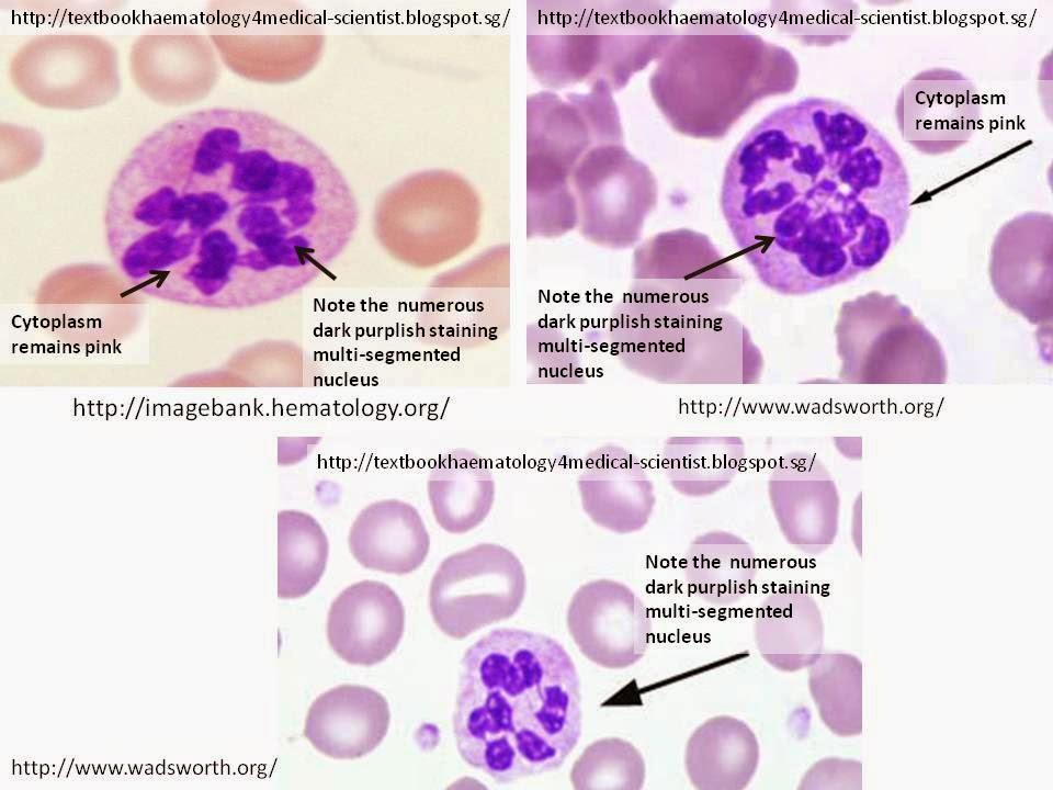 Haematology in a NutShell: Pernicious Anemia (Vit B12 ... B12 Deficiency Smear