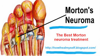 TOP Morton neuroma treatment
