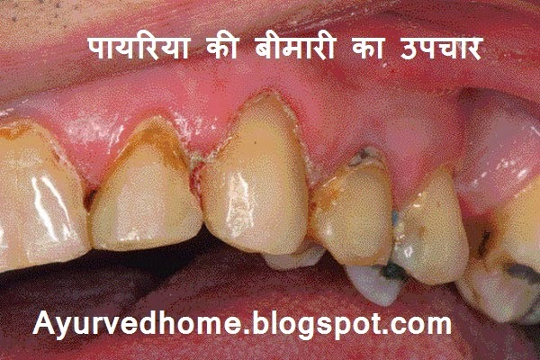 Pyria Disease Treatment in Hindi