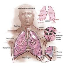 DO YOU RISK CANCER OF THE PLEURA