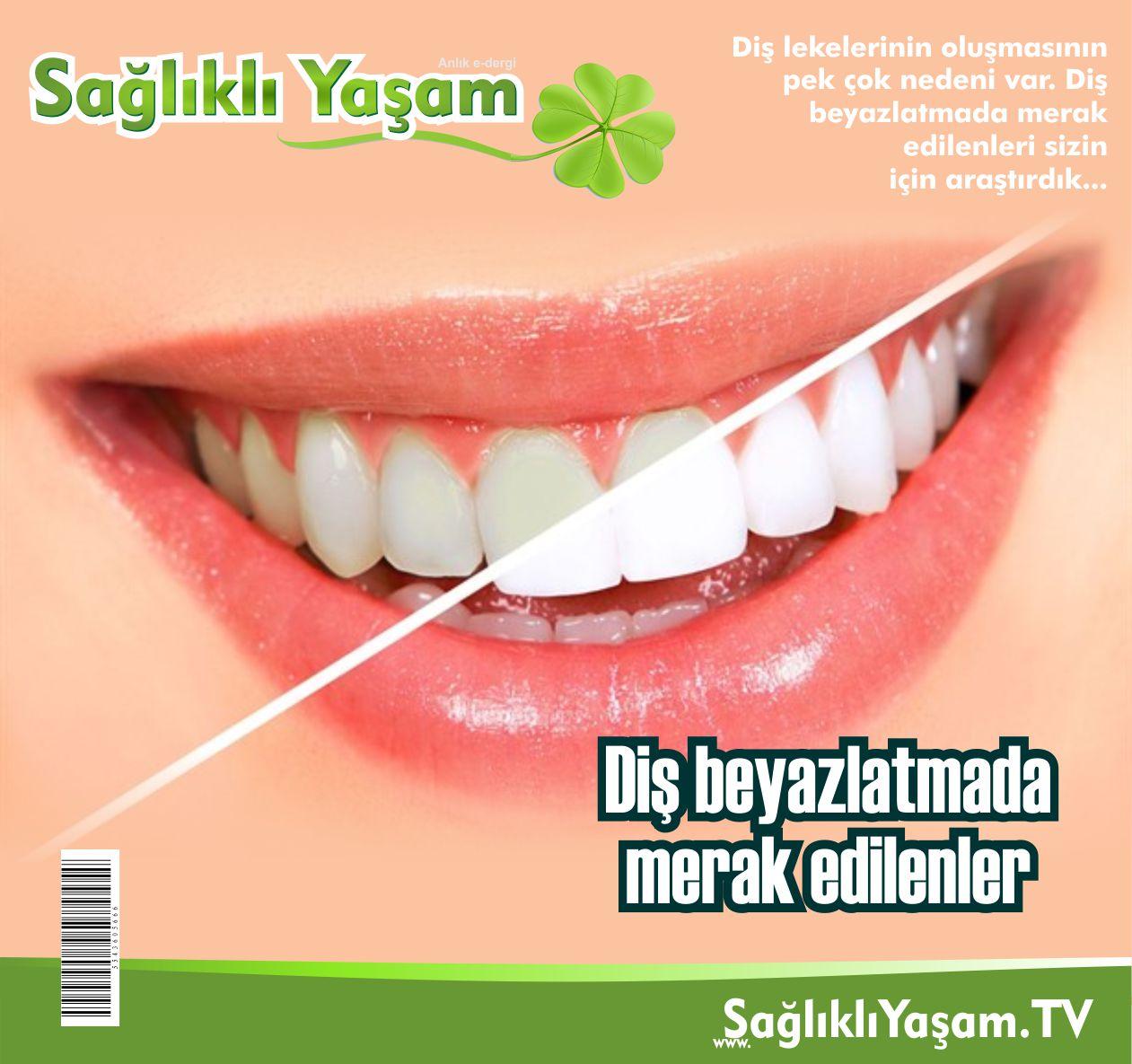 Ağız ve diş sağlığı, Diş beyazlatma, Zararları, Faydaları,