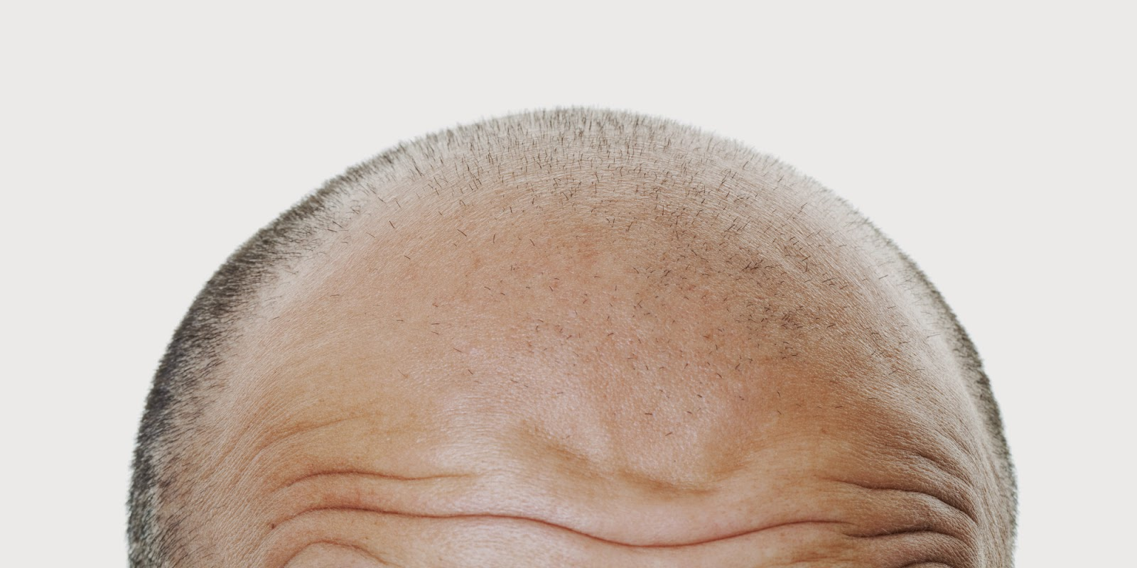 Hair Transplantation Treatment