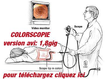 http://www.multiup.org/en/mirror/5d62f9404d41b450ceac8613b8399dfa/VIDEOTHON_19-_Colorscopie.avi
