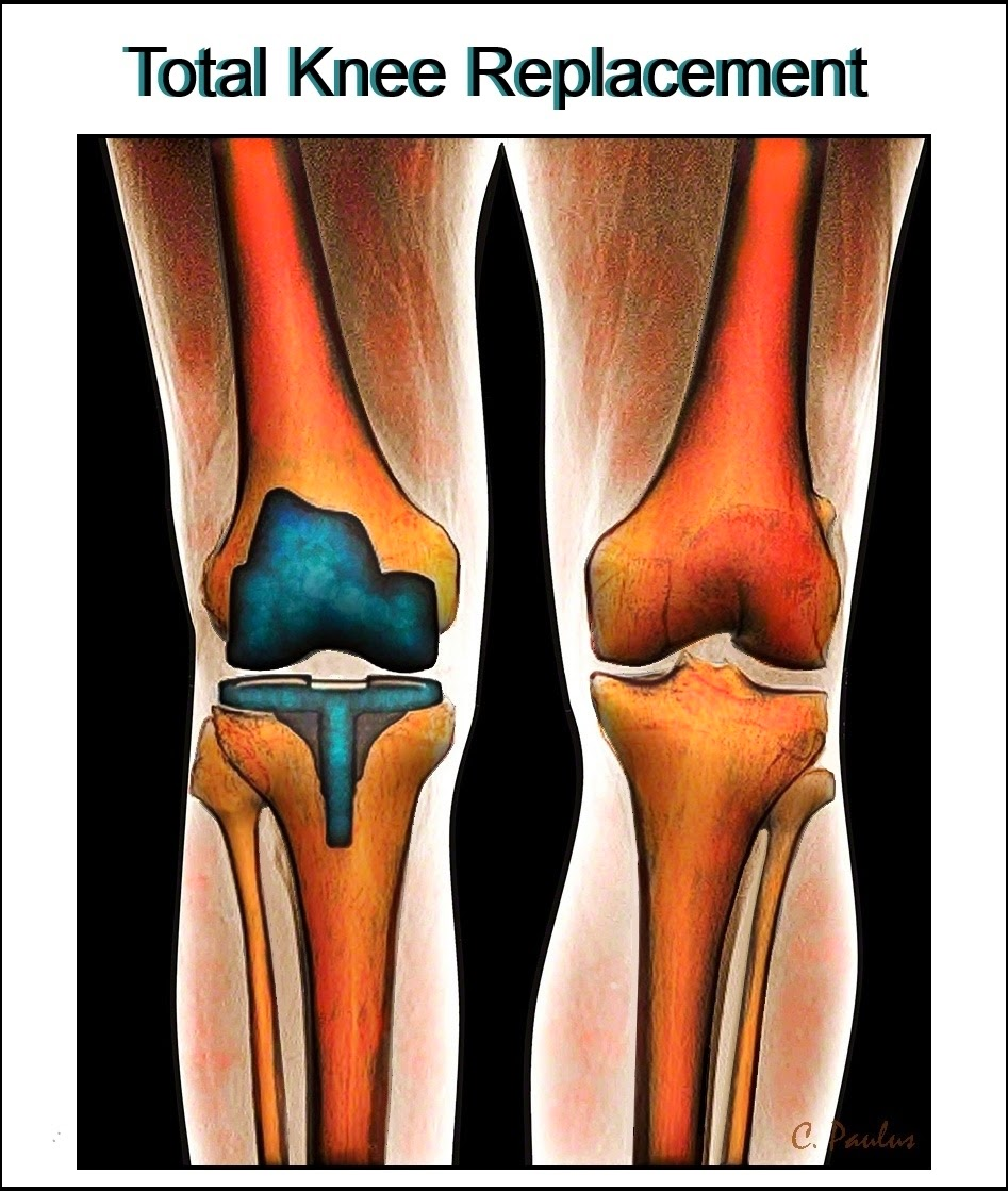AP Color Knee X-Ray of a Total Knee Replacement (TKA)