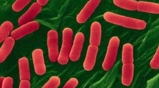 E. coli,