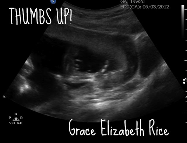 baby, ultrasound, thumbs up ultrasound,