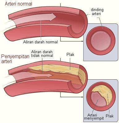 Arteri normal dan arteri menyempit